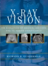 X-Ray Vision: The Evolution of Medical Imaging and Its Human Significance - The Evolution of Medical Imaging and Its Human Significance