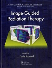 Image-Guided Radiation Therapy